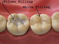 dental bonding or filling toronto markham