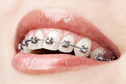 orthodontic treatment toronto markham