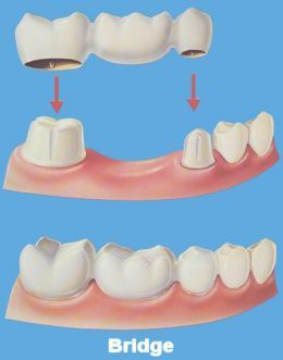 dental bridges Toronto Markham 3