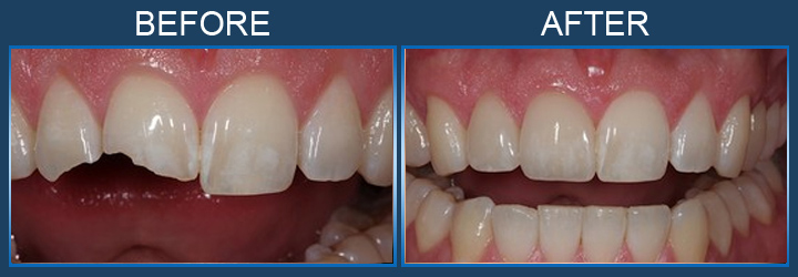 dental crowns Toronto Markham 4