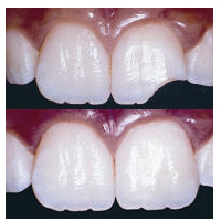 dental crowns Toronto Markham 5