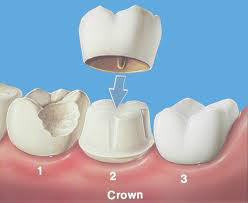 dental crowns Toronto Markham 1