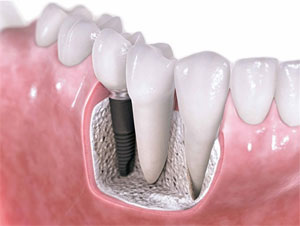 dental implants Toronto Markham 1