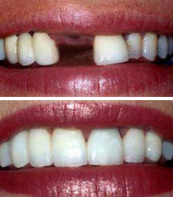 dental implants Toronto Markham 2