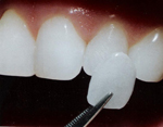 Dental Veneers Toronto Markham