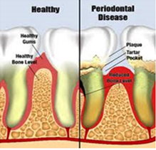 periodental treatment toronto markham