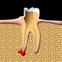 root canal therapy Toronto Markham 1