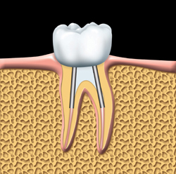 root canal Toronto Markham 2 - Root Canal Markham