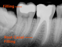 root canal Toronto Markham 3 - Root Canal Markham