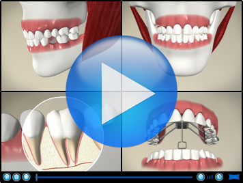 video of dental cleaning method of flossing toronto markham