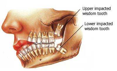 wisdom tooth removal Toronto Markham 3